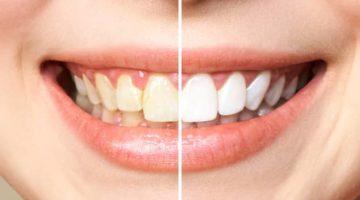 Blanchiment des dents dentistee à Lyon