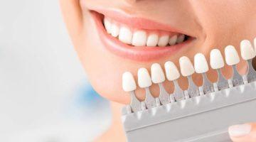 Conseils pour entretenir son blanchiment dentaire Lyon