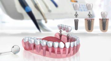 Le Dr Compagnone propose les implants dentaires Lyon