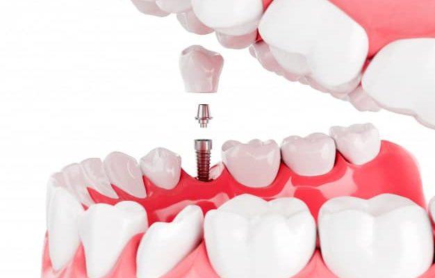 Le Dr Compagnone soins post opératoires implants dentaires Lyon