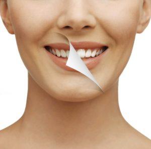 Blanchiment dentaire dentiste à Lyon