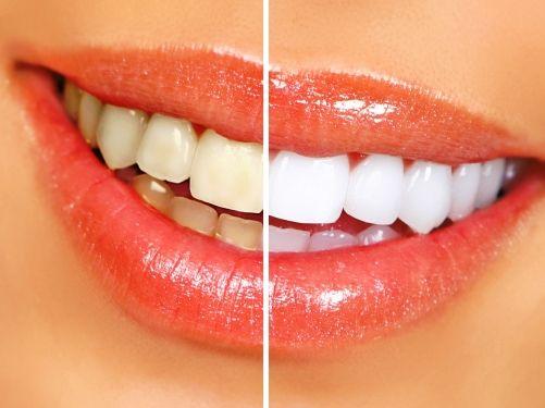 Le Dr Compagnone propose le service Blanchiment dentaire Lyon