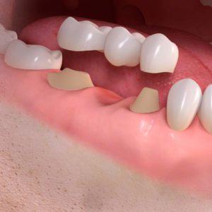 Pose de céramiques dentiste à Lyon