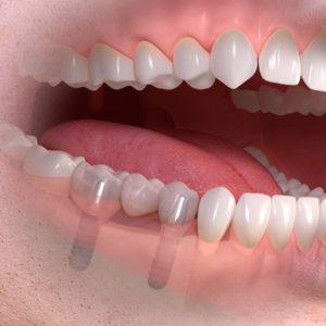 Pose de céramique dentaire dentiste à Lyon