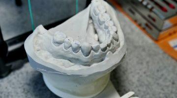 empreintes dentaires