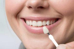 Pose de facette dentaire Lyon