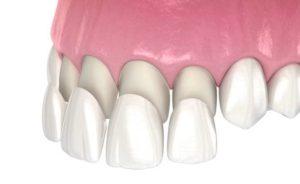 Pose de facette dentaire chez votre dentiste à Lyon