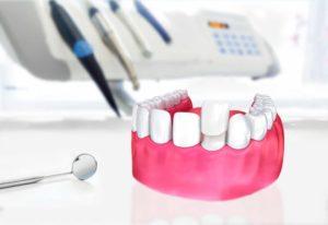 Pose de facette dentaire dentiste à Lyon