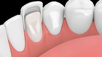 fonctionnement facettes dentaires dentiste à Lyon
