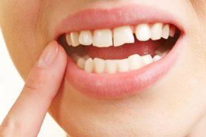 Soin dentaire gencive dentiste à Lyon