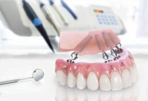 Greffe osseuse sinus dentiste à Lyon
