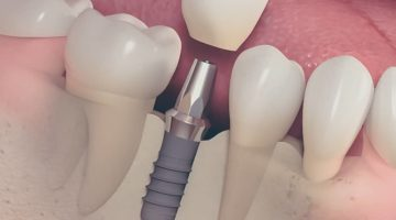 Pose implant dentaire chez votre dentiste Lyon