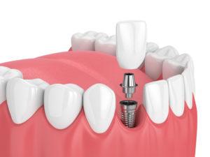 Implant dentaire dentiste à Lyon