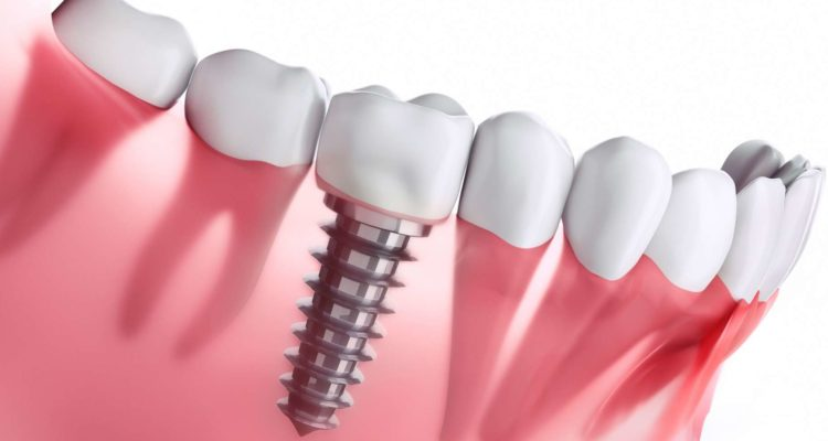 Votre dentiste à Lyon propose la pose d'implant dentaire