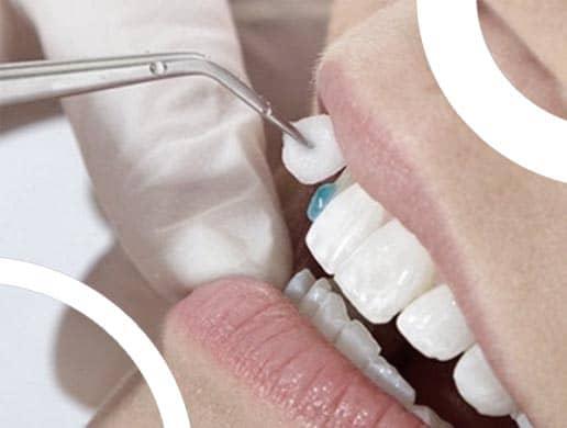Dr Compagnon dentiste à Lyon, discute du retrait des facettes dentaires