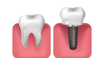 Risques pose implant dentaire dentiste à Lyon