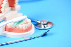 Soins gencives cabinet dentiste Lyon