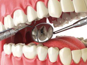 Soins caries dentiste à Lyon