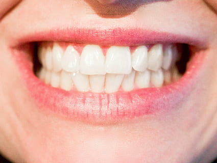 Facette dentaire céramiqueà Lyon